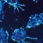Immagine di cellule tumorali al microscopio