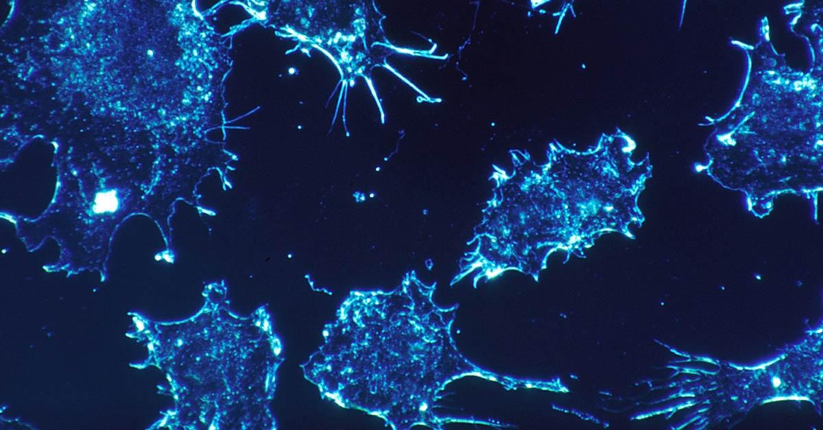 Gli agenti cancerogeni e mutageno possono provocare mutazioni cellulari e causare neoplasie. In foto delle cellule tumorali