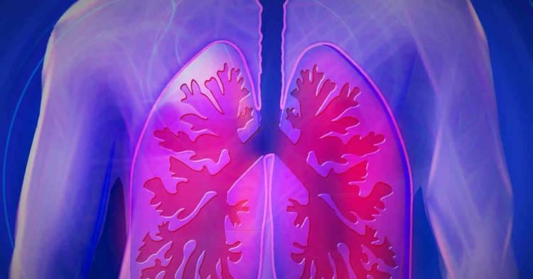 Infografica di polmoni colpiti da patologia. La Radioterapia ad Adosi dopo la chirurgia. Uno studio dei ricercatori del Centro Oncologico di Aviano
