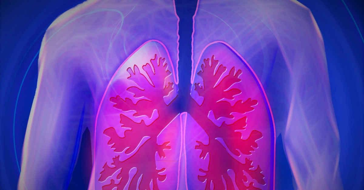 Infografica di polmoni affetti da mesotelioma pleurico
