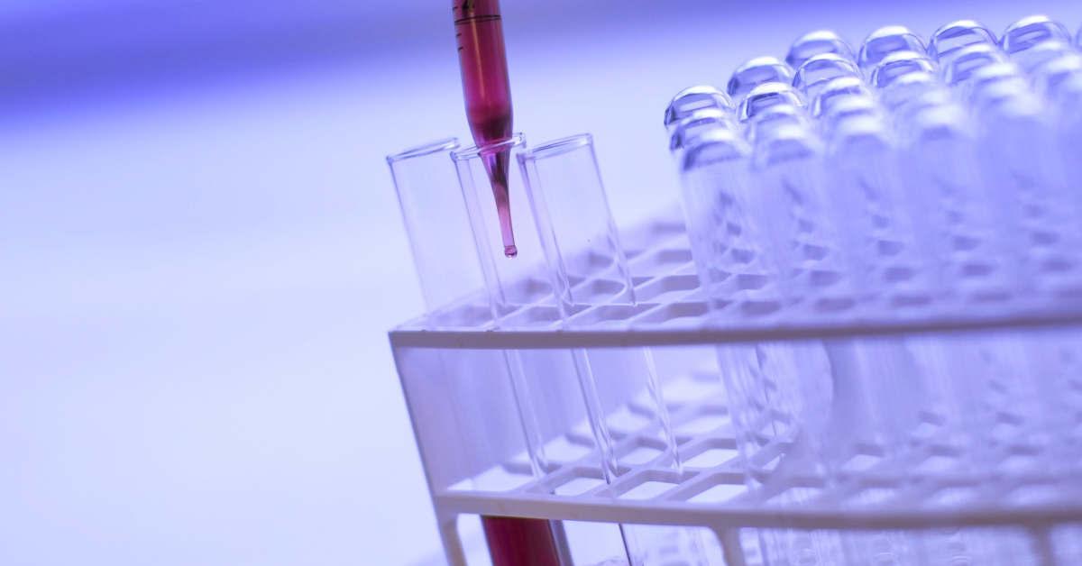 Provette in un laboratorio di ricerca. Immunoterapici migliorano la sopravvivenza globale nel mesotelioma