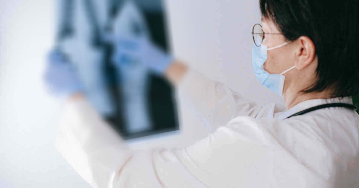 Medico che controlla una radiografia